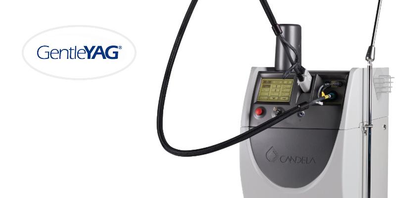 Gentle YAG Laserhaarentfernungsgerät für geringe Kosten bei der dauerhaften Haarentfernung